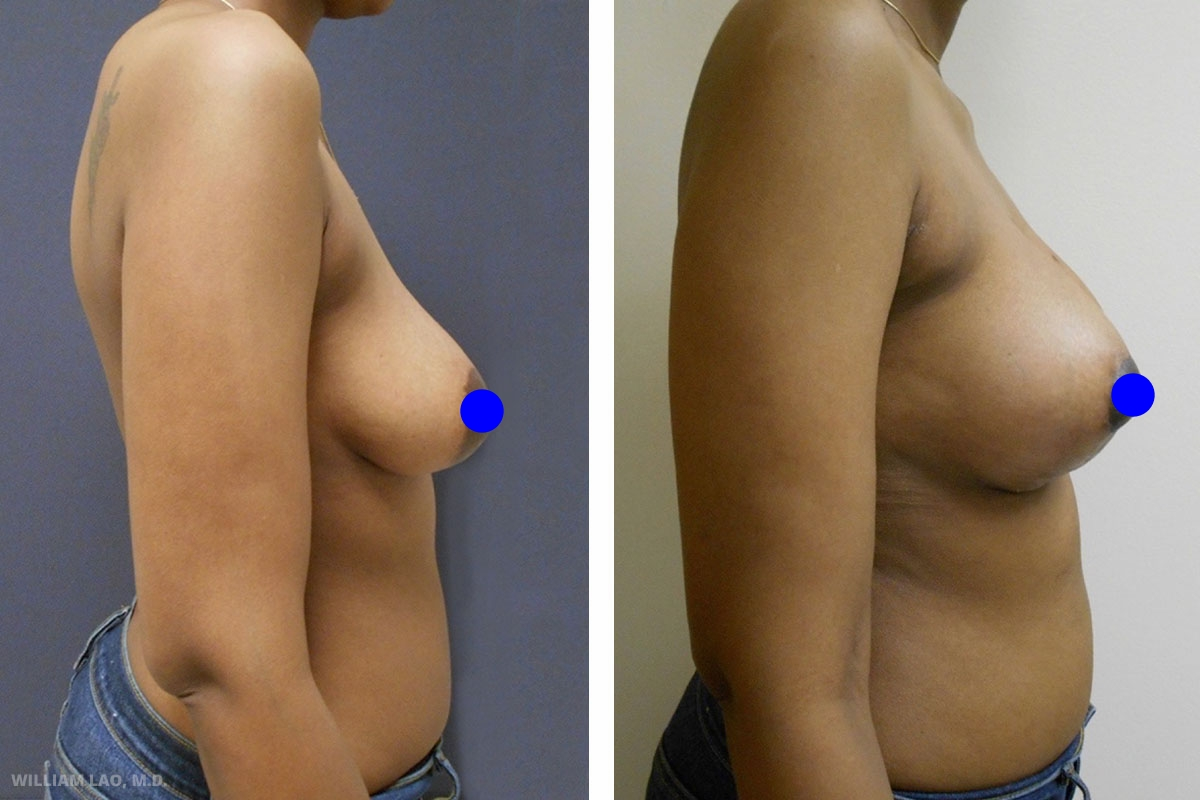 C,33 歲,非裔美國人   C是一位在紐約的33歲護士。她一直希望豐胸並改善下垂。諮詢中,我們討論了希望的尺寸及可接受的切口形式。最後決定用中等尺寸的矽膠植入胸大肌下方並設計了皮膚切法來縮小乳暈拉提胸部。術後她非常開心,恢復過程非常平順,在術後5天便回到工作崗位。C小姐後來又回來做了其他身體整形手術,包含全身抽脂及豐臀。    瞭解更多