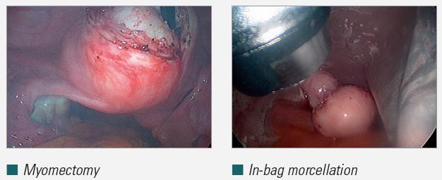 myomectomy