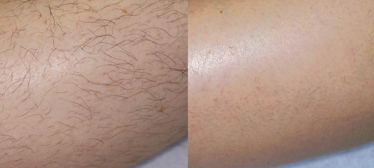 Icon-M-adatto-leg-hair-post3Tx-4.jpg
