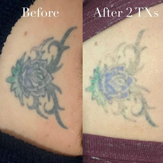 If you've ever thought about tattoo removal/lightening a tattoo to get a better cover up, we've got you covered. Our consultations are always free. Call us or head on over to our website to book!