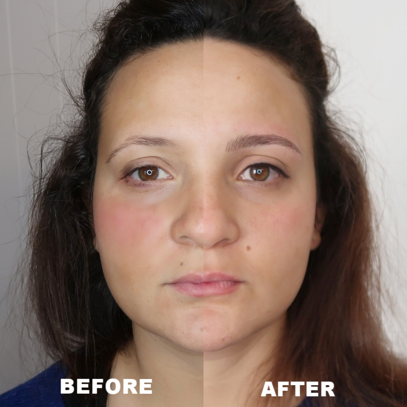 EYEBROW ENHANCEMENT BEFORE&AFTER