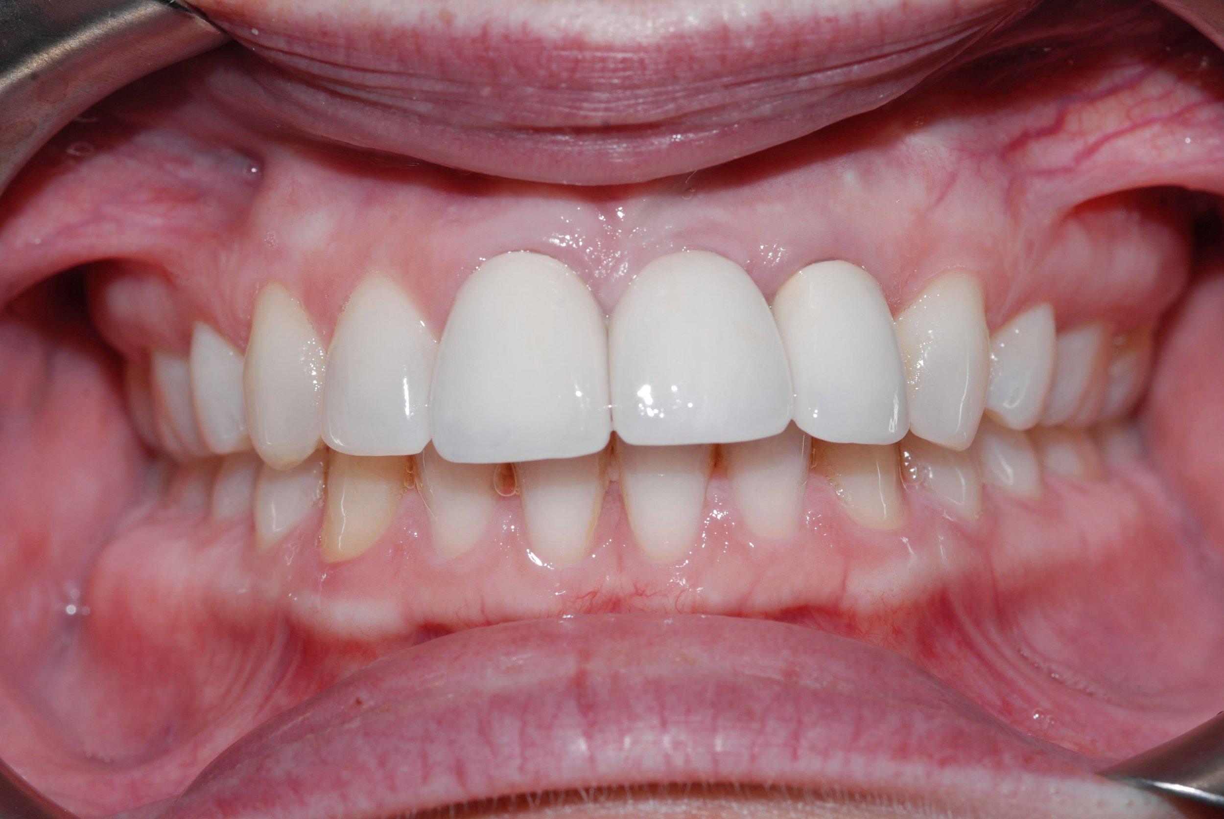 redmond-implants-after-belred-dentists.JPG