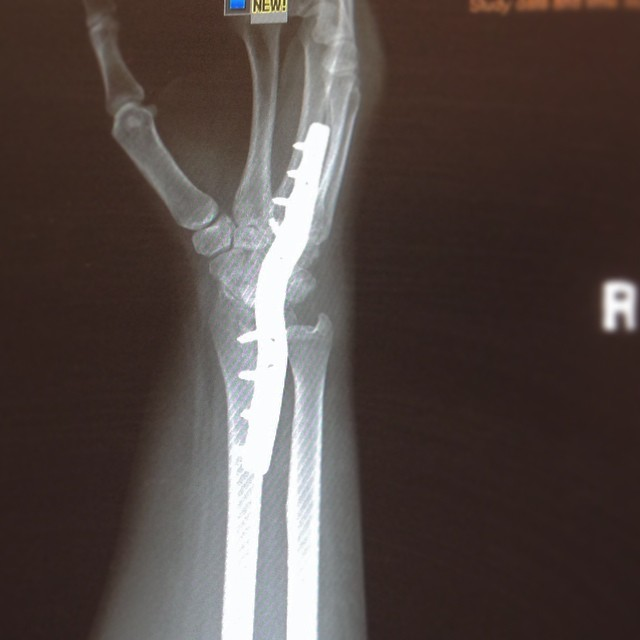 My wrist currently