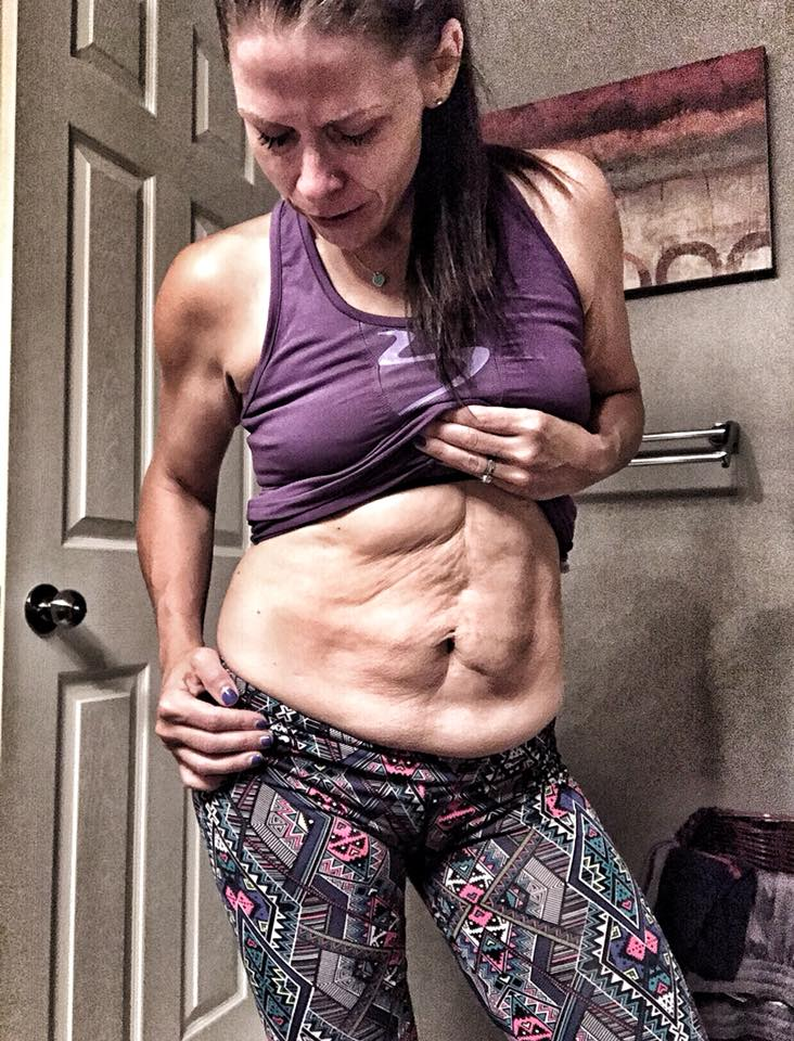 """The day I cried 😢 in the bathroom….  The day I knew it was time…  Size 2. XS. 132 pounds. Healthy. Strong. Clean Eater🥦🥑🥕. Exercises 5-6 days a week.  Here I was being trained by a world class super trainer, in the middle of an incredible ABS, Legs and Booty 🍑 program and THIS was my reality..  Some times I would self sabotage myself... """"What's the point"""".... this is """"HOPELESS""""... it's never going to get better..  But this time I DID NOT self sabotage myself. I followed the plan by a team of nutrition experts and a super trainer. 💯 % commitment. 💯% dedicated.  As I watched everyone else get their abs, their bodies changing, MINE was HERE.... The reality of YEARS of obesity. 3 Babies. 3 C sections. Diastastis Recti.  I cried 2 times that week. My son caught me. I felt silly as I wiped my tears of shame... I'm a grown ass woman... Crying over this... It was time.  I went on to finish my 80 Day Program, committed 💯 % to my nutrition and my daily workouts, lost an additional 10 pounds, 14 inches, and was left with even MORE loose skin, making me a PRIME candidate for loose skin removal and a full Tummy Tuck.  I did EVERYTHING I could do... and now just needed help.  As a coach I see transformations EVERY DAY😍. Some are lucky and bounce back.. Me.. not so much.  I knew that after I put in the work, got to my goal weight, was in the ABSOLUTE BEST SHAPE, I was going to fix this.. once and for all, so on my 36th birthday 🎂, I skipped the cake... and I called the clinic and booked the surgery I've been waiting YEARS for.  And TODAY.. I'm happy to report I cried tears of JOY. 🙌❤️For the first time in my life, I feel NO SHAME.  I will share with you my 24 day progress picture tonight!  My mind is blown.. I think yours will be too 😉😍"""