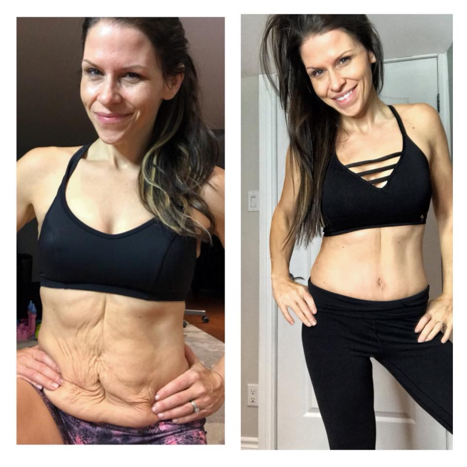 Transformation Tuesday!  SHAME needs 3 things to grow exponentially in our lives. 🤫Secrecy, silence🤐, and judgement😔 ~ Brene Brown  I've been living in this body for 36 years... and it's been 36 days since I've had my LIFE changing surgery. 1 pound of skin was removed!  Full muscle repair for diastasis recti, Tummy Tuck… and YES..for those asking... and speculating🤔 ...,I did opt for the FULL...MOMMY MAKEOVER, 🎾🎾🧦 👉⬆️😍 😉 cause hell.... at 36, I feel just too damn young to NOT feel good about myself for the next 60+ years!  Truth be told out of all of my posts on social media, opening up about my decision about plastic surgery was THE hardest one.  Why? Because part of me felt SHAME. Part of me thought this should be kept SECRET so no one would JUDGE me. 👉👉The ULTIMATE internal recipe for disaster!  But for I know SILENCE is SUFFERING and in order for ME to FULLY heal, I needed to stand tall, be proud, and use my story as a means to INSPIRE others who may be feeling the same.... and lets face it. NO ONE talks about this stuff.  So I will. 👊❤️It's actually been a blessing to be able to connect with women all over the world!  I wanted to be a VOICE for those SUFFERING with body image issues, so that they KNOW, that there is absolutely NO SHAME. 💜You gotta own it, and do YOU, for those who judge are not worthy of your attention anyways, nor have walked a mile in your shoes.  If you're operating out of a place of SHAME, guilt, secrecy, or UNWORTHINESS , well friends... that is NOT healthy. Period, and that needs to change.  I teared up at my follow up appointment last week. After years of obesity, I've NEVER been able to look at my belly in the mirror and love what I see. Sure I could bullshit myself somedays... but let's face it. Those voices weren't going away without proper intervention with the help of some ridiculously talented and life changing angels.  There is NO shame in my life.. and you wanna know the BEST part??? I no longer judge MYSELF or even worry about t