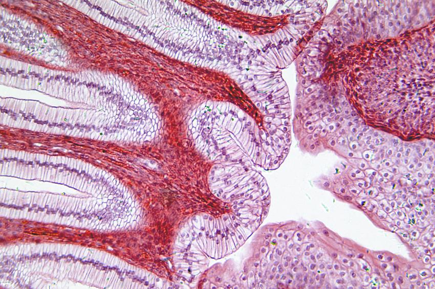 Proteomics Discovery