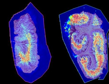 Figure 3.  Reconstructed ion images of bile acids in the lumen of the rat intestine. Samples were prepared using the HTX Sublimator.
