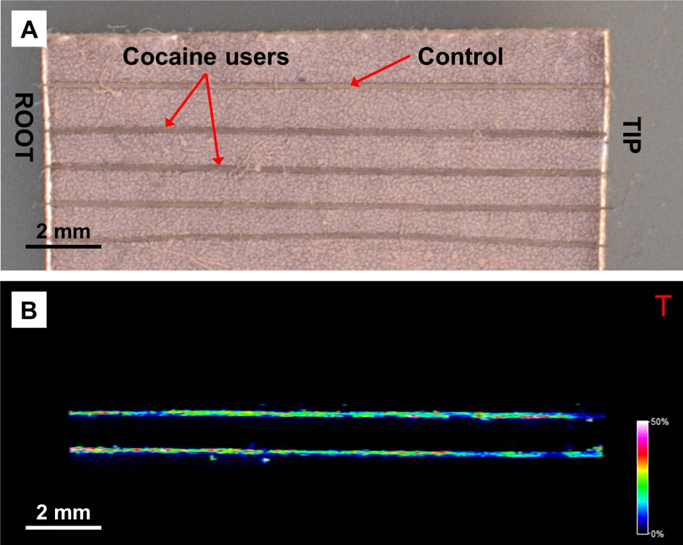 HTX Application Note #51 - MALDI-FTICR-MS imaging showed the presence of cocaine in hair samples, showing the use of MALDI-MS imaging in forensic toxicology.