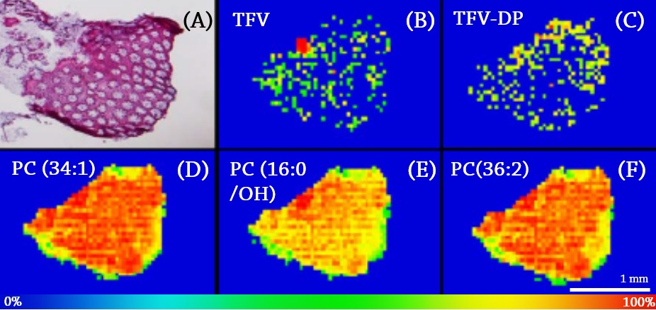 Figure 3.  (A) H&E stain of colorectal tissue biopsy. MALDI MS ion image of TFV ( m/z  = 288.0860 Da) (B), TFV-DP ( m/z  = 448.0194 Da) (C), PC (34:1) ( m/z  = 760.5856 Da) (D), PC (16:0/OH) ( m/z  = 496.3403 Da) (E), and PC (36:2) ( m/z  = 786.6013 Da) (F). Spatial resolution for MALDI MS ion images was 50 μm. The highest signal intensity (100%) is represented by red and the lowest signal is represented by blue for each ion of interest.