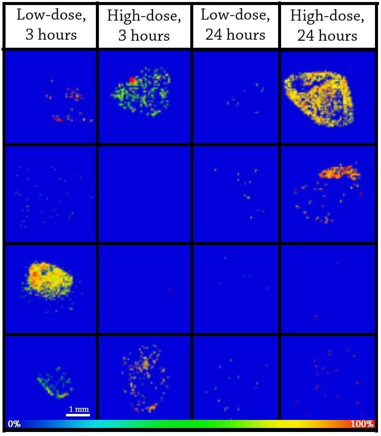 Figure 4.  MALDI MS ion images of TFV in colorectal tissue biopsies from 4 study partcipants (J001-J004) at two different doses and timepoints. Spatial resolution for MALDI MS ion images was 50 μm. The highest signal intensity (100%) is represented by red and the lowest signal is represented by blue for each ion of interest.
