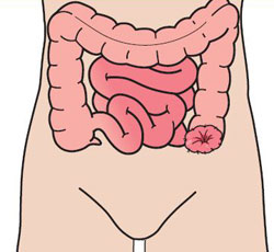 Colostomy - In a colostomy operation, part of your colon is brought to the surface of your abdomen to form the stoma. A colostomy is usually created on the left-hand side of your abdomen. Stools in this part of the intestine are solid and, because a stoma has no muscle to control defecation, will need to be collected using a stoma pouch.
