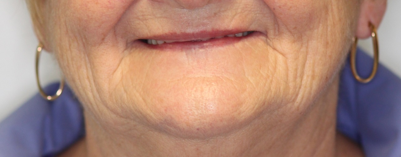valplast flexible partial dentures 1.jpg