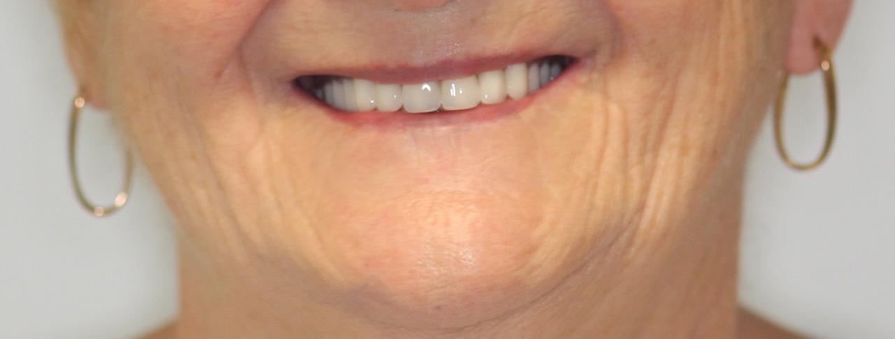 Dentures — Blyton Dental