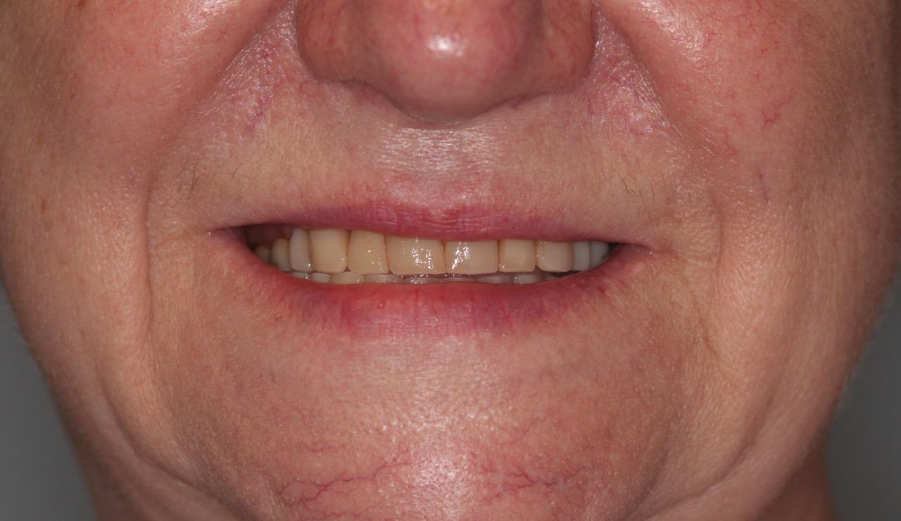valplast flexible partial dentures 4.jpg