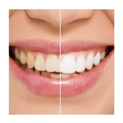 whitening before and after.jpg