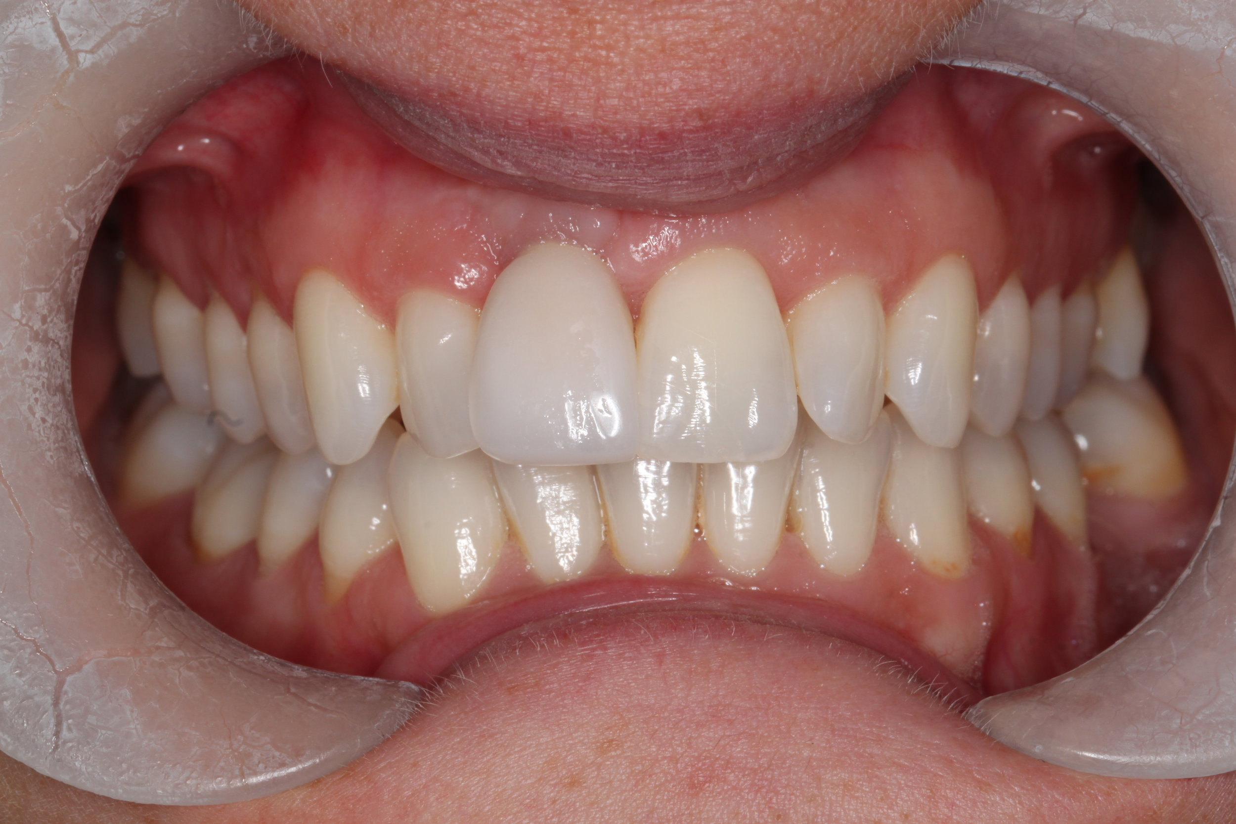 Soft issue graft done buccal to UR1 and teeth whitening o improve the shade