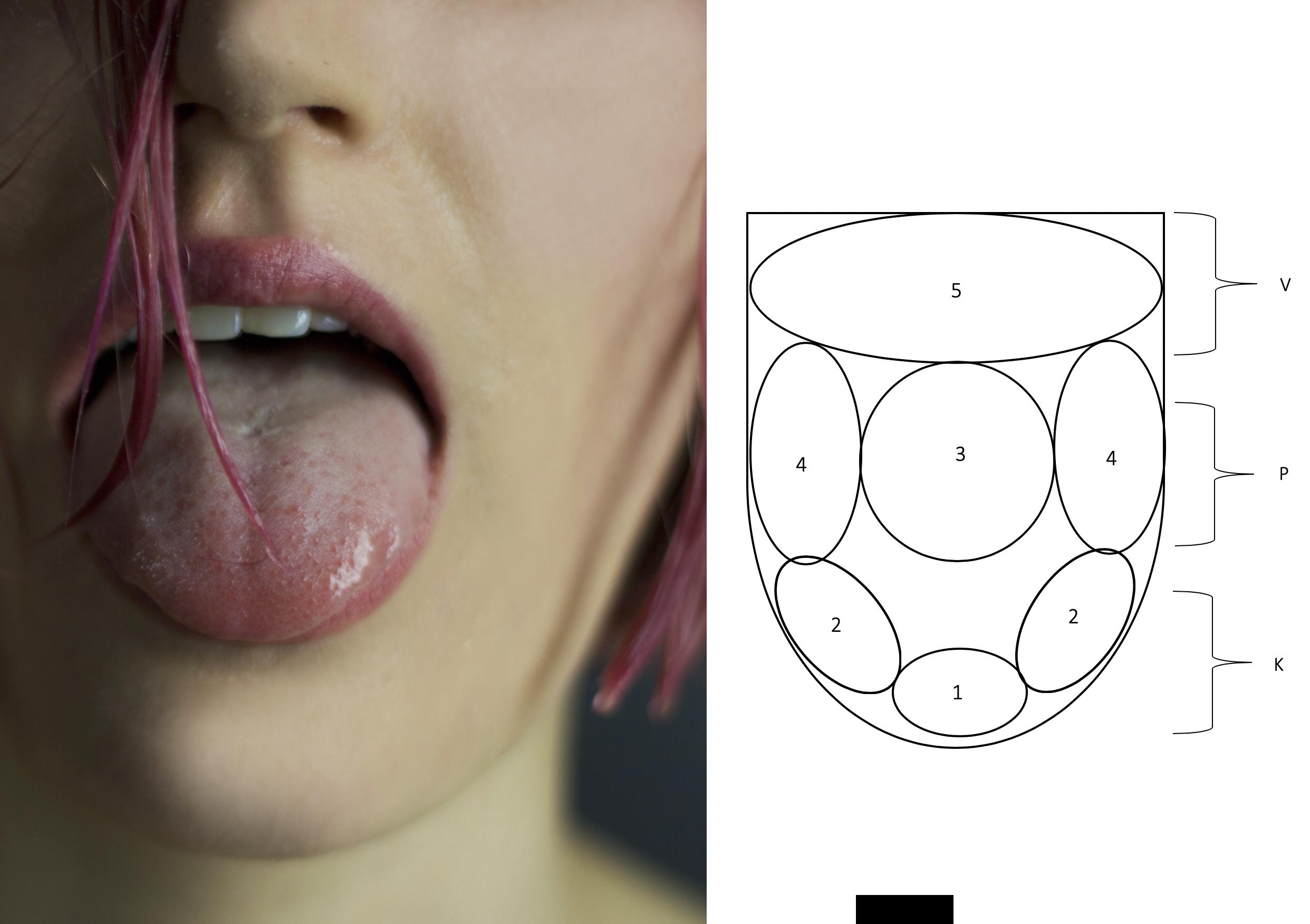 Tongue diagnosis.png