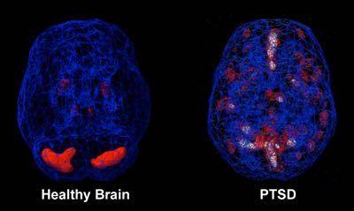 brain_with_PTSD.jpg