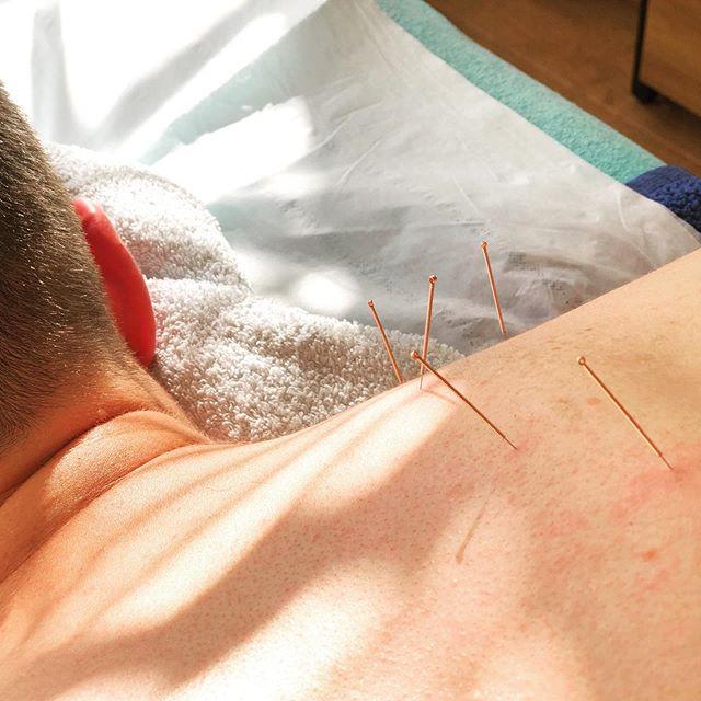 Medical acupuncture for upper back and shoulder pain . .  #trapezius #rhomboids #levatorscapulae #musclepainrelief #medicalacupuncture #dryneedling #dryneedlingtherapy #shoulderpainrelief #sportsmassage #sportsmassagetherapy #triggerpointtherapy #triggerpoints