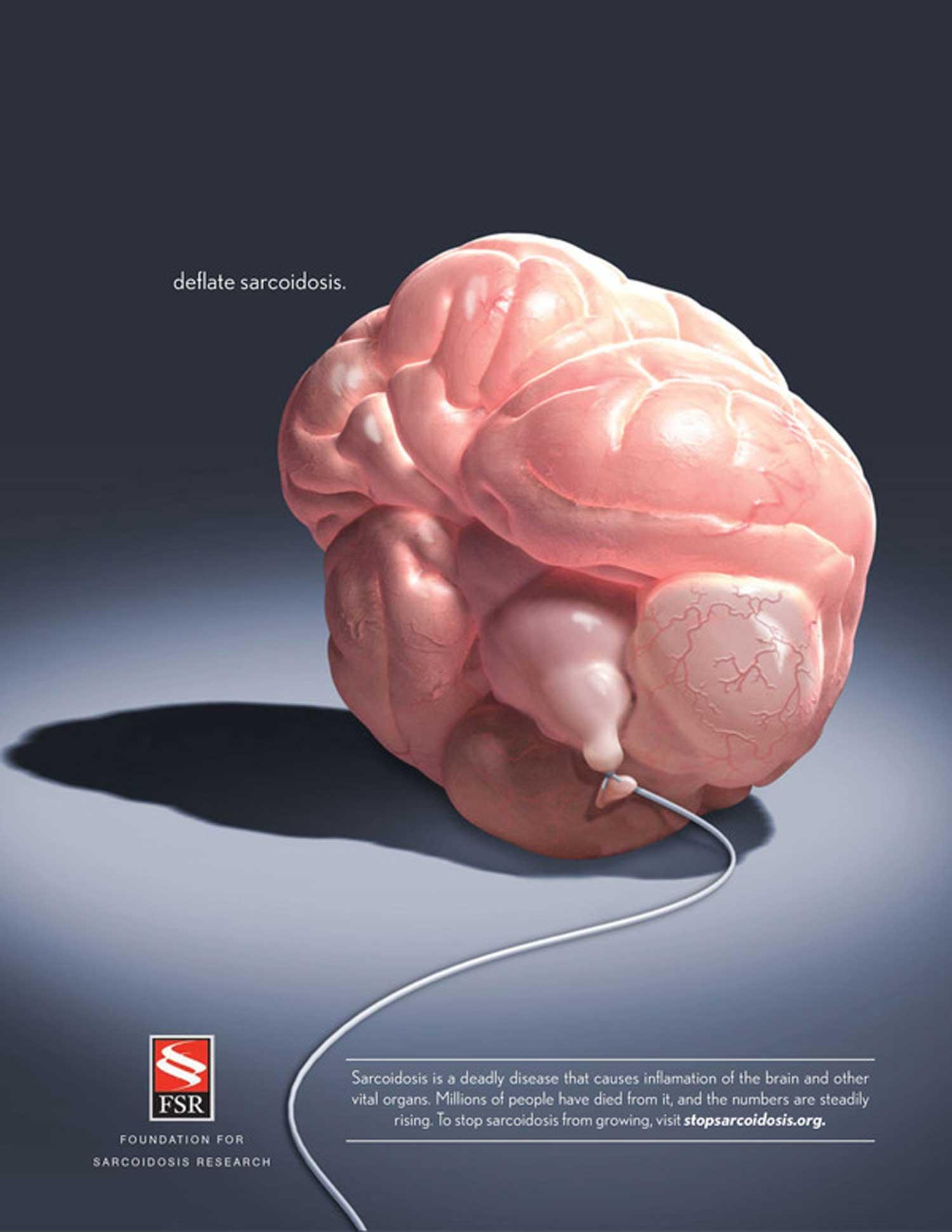 Sarcoidosis_Brain.jpg