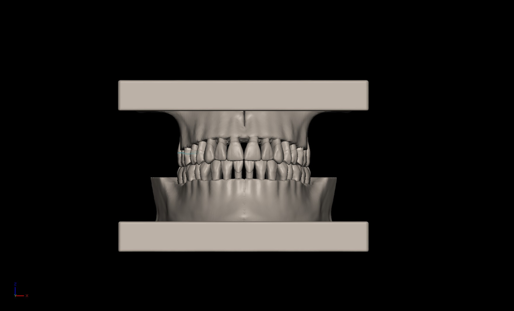 Teeth Pic1.jpg