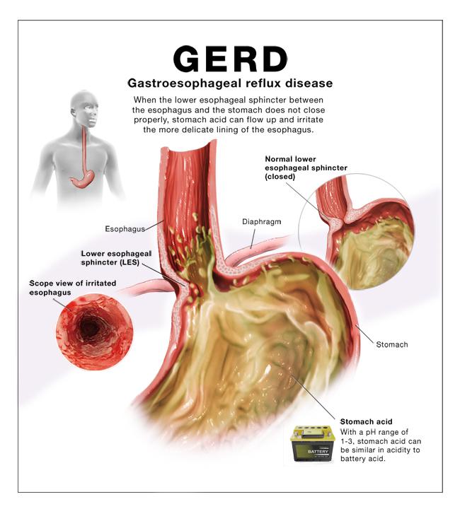 GERD illustration dedscription