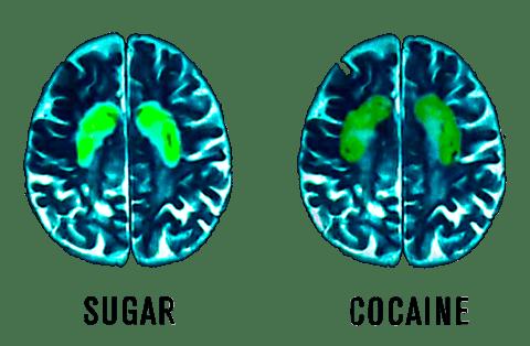 Left: Brain on Sugar Right: Brain on Cocaine