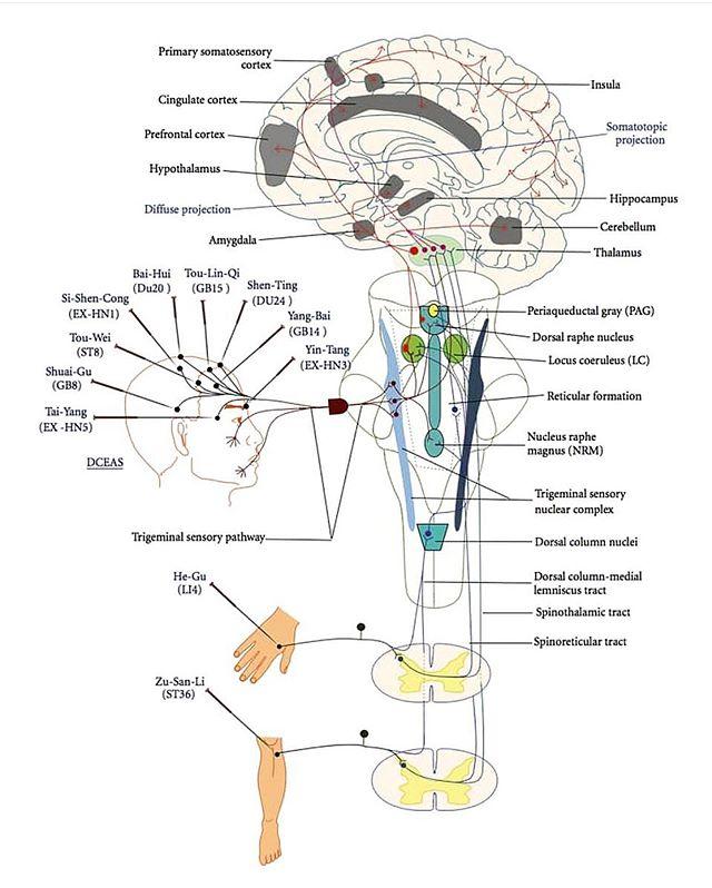 Om smerte fra @ostvanghelse Smertestillende legemidler har en lang liste av potensielt farlige bivirkninger. De er samtidig generelt veldig lite effektive mot kronisk smerte. Akupunktur er et sikkert og virkningsfullt smertestillende alternativ, som har blitt brukt i tusener av år i østen. Nå er metoden på vei inn i vestlig mainstream medisin for fullt.  De siste 60 årene har akupunkturs smertedempende effekt blitt grundig undersøkt. Det er fortsatt mye vi ikke vet om nålebehandlingens virkningsmekanismer, men nervesignalets ferd fra nålestikket via ryggraden til deaktivering av smertesentre i hjernen er kartlagt.  Akupunktur aktiverer flere av kroppens egne opioider (morfinlignende stoffer) og øker samtidig hjernens følsomhet for disse opioidene. En rekke andre stoffer involvert i smerteredusering, som f.eks. ATP, adenosin, GABA og substans P, frigjøres eller reguleres også av akupunkturbehandling. Noen av disse gir effekt etter 20 minutter, mens andre trenger seks eller flere behandlinger før konsentrasjonen i vevene er høy nok.  Les mer om forskning på akupunktur for smerte her: https://www.evidencebasedacupuncture.org/pain/ ostvanghelse #phoenixklinikken #tuina #akupunktur #dryneedling #manuellterapi #massasje #kopping #smerte #smerter #smertefri #migrene #fibromyalgi #hodepine #rygg #helse #holistisk #velvære #iform #livsstil #bedrehelse #oslo
