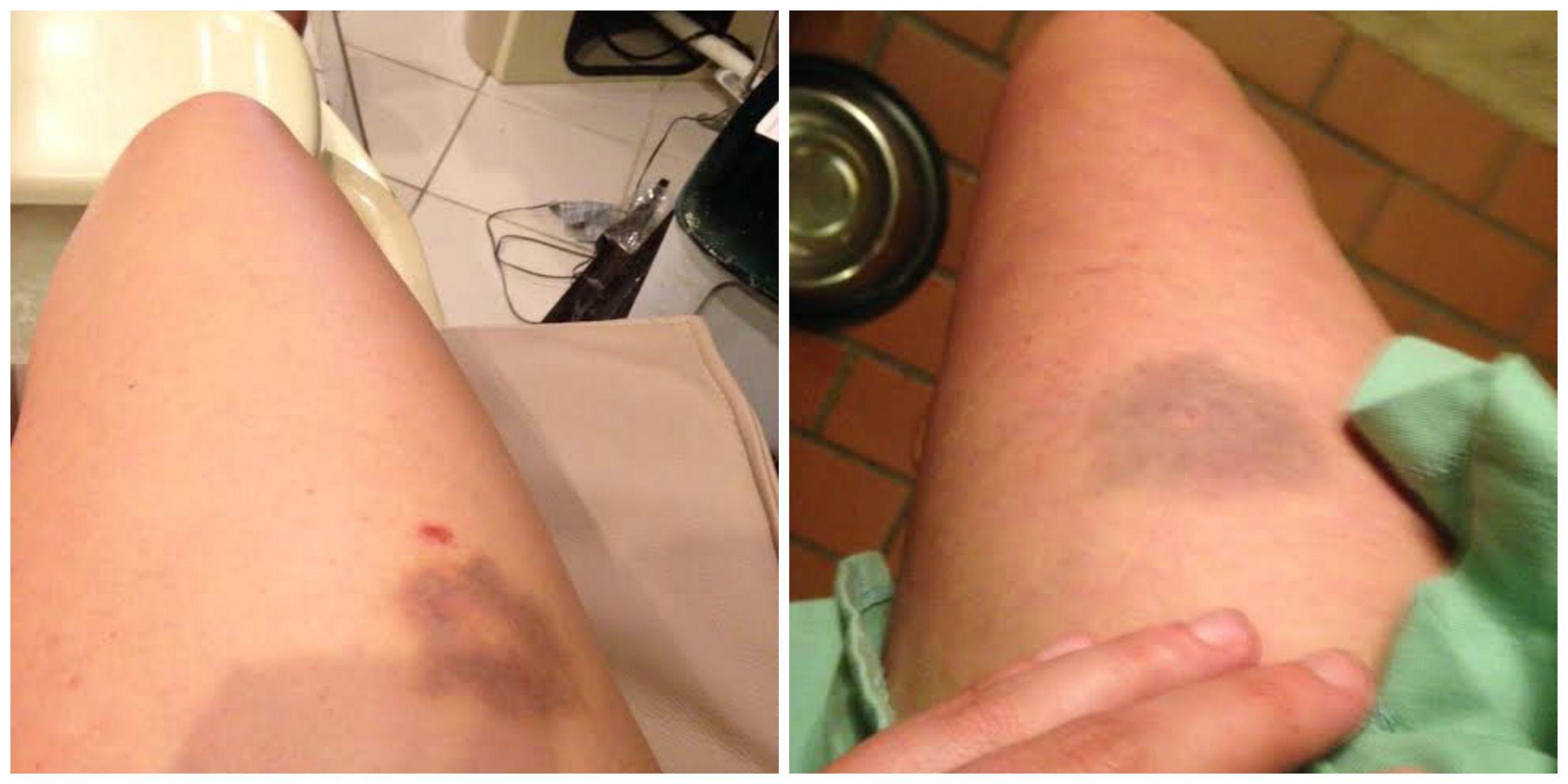 My attractive bruises
