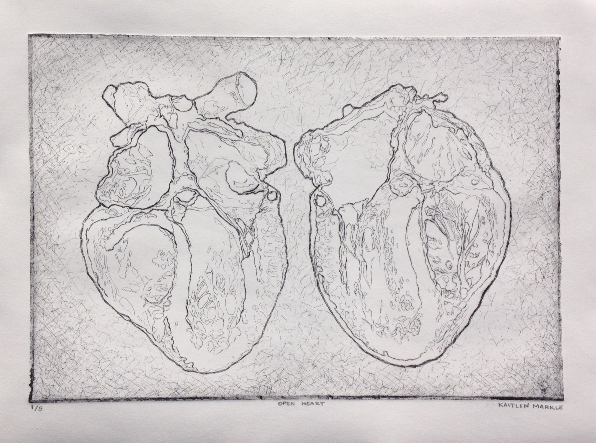 """Open Heart"" by Kaitlin Markle"