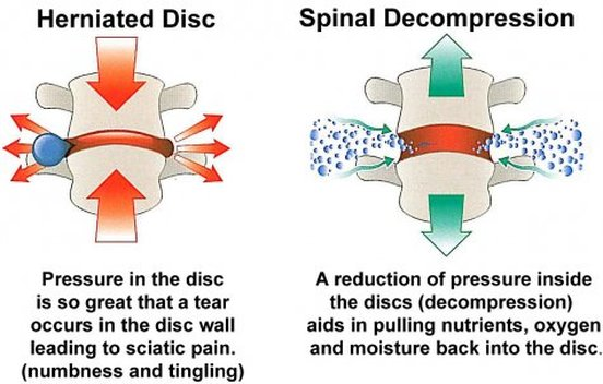 Spinal Decompression.jpg