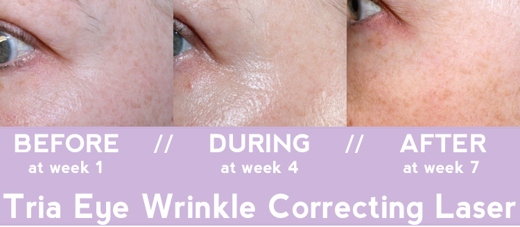 Tria Age-Defying Eye Wrinkle Correcting Laser BEFORE + AFTER
