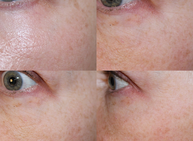 Tria Eye Wrinkle Correcting Laser BEFORE + AFTER
