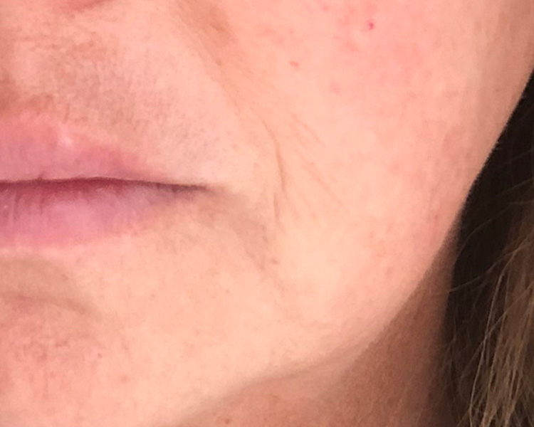 StriVectin Wrinkle Recode Before