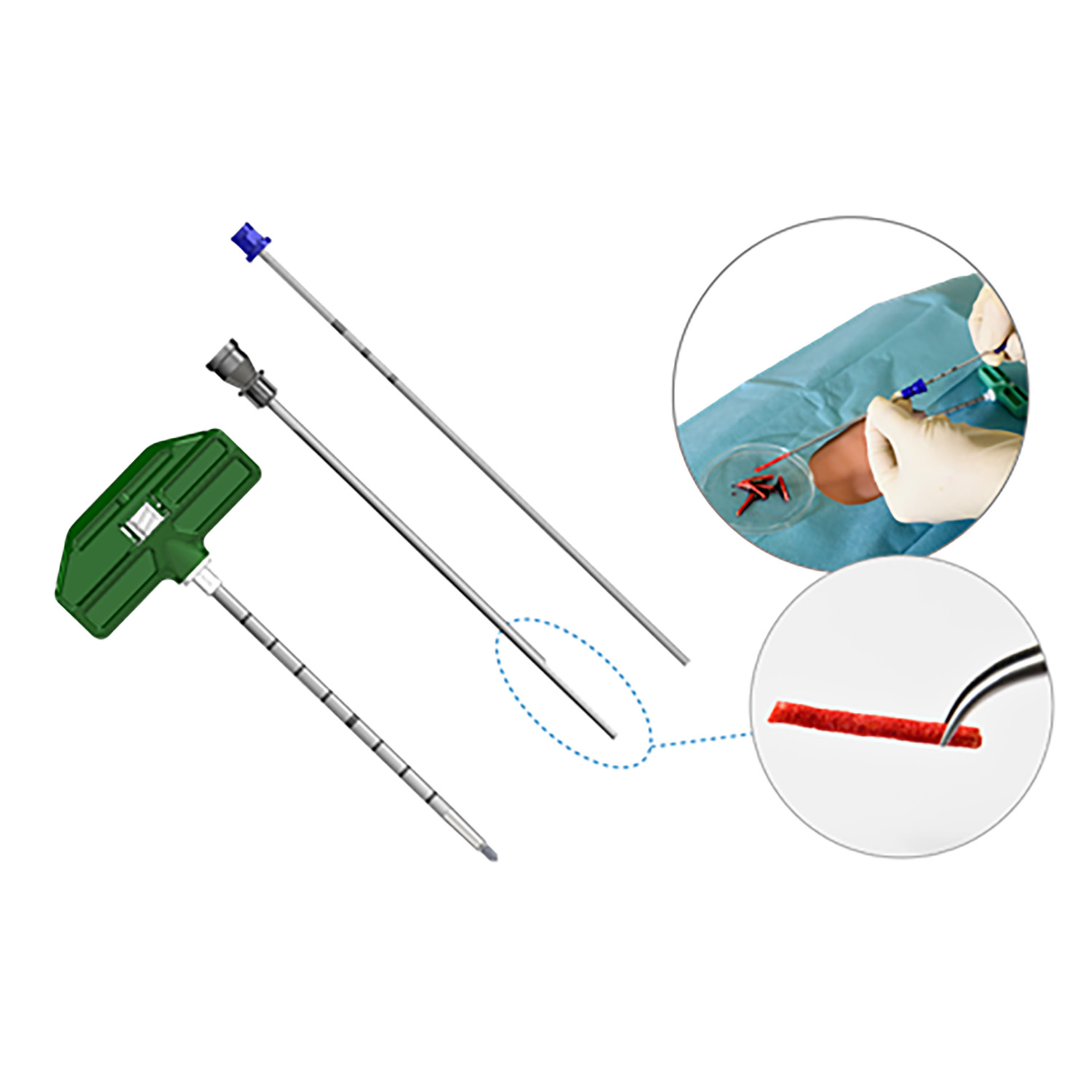 Marrow Cellution™ and Percutaneous Cancellous Bone Harvesting Procedure Kit