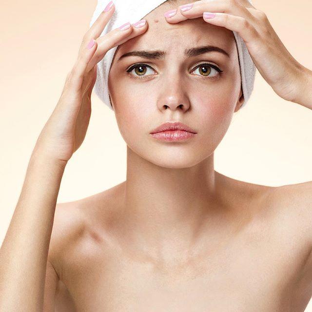 Cuida tu piel con nuestro suero de Ajo, y deshazte de las espinillas y los brotes de acné con un antibiótico natural #spa #skin #skincare #cuidatupiel #curridabat #costarica #acnetreatment #saluddelapiel