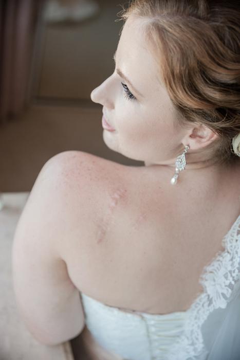 Dear Melanoma - Tanya Love Photography (14).jpg