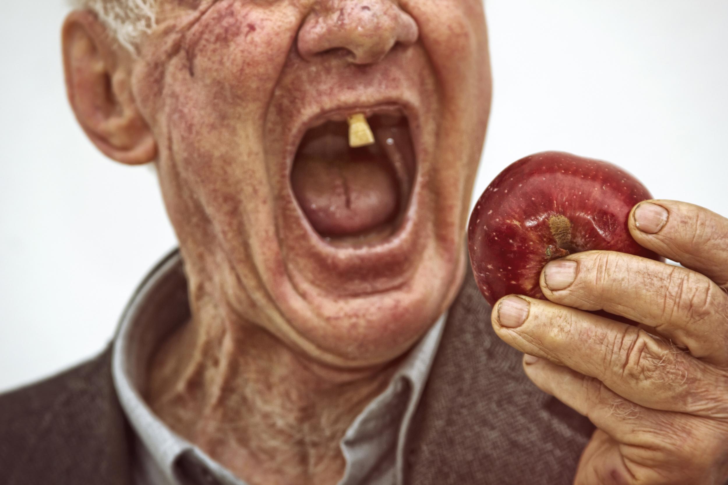DenturesApple