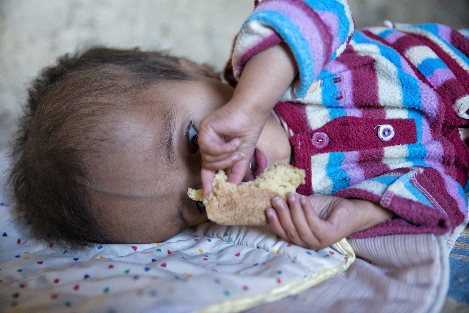 - Hayat suffered from hydrocephalus.His parents are first cousins. He died at the end of 2014. Hayat was the third child who died prematurely. Currently they have left a child of two years, who is apparently healthy.