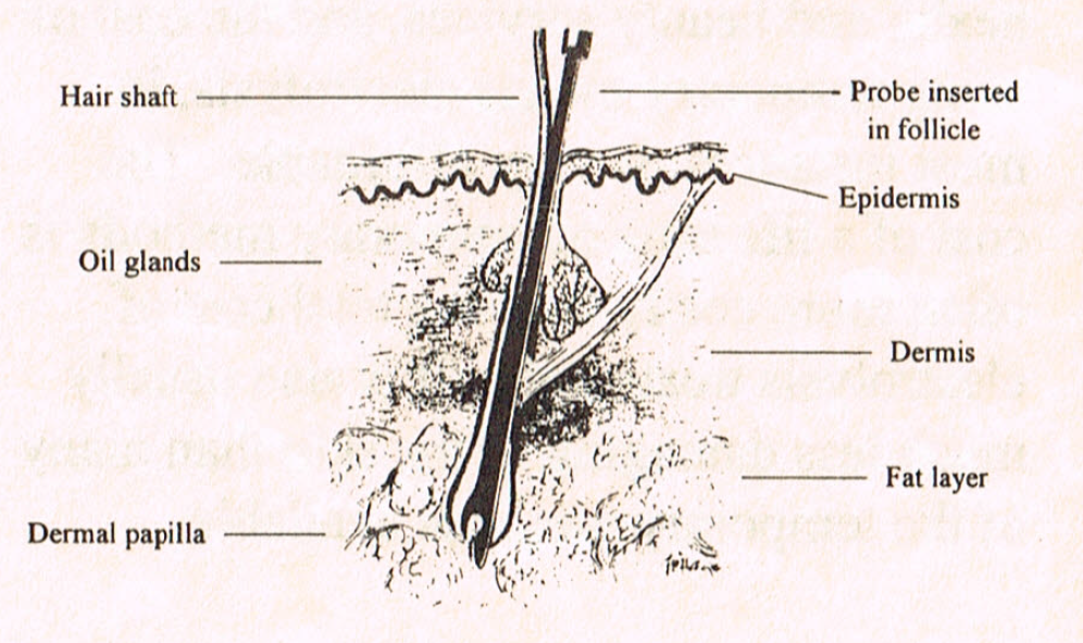 Diagram of the hair and hair follicle