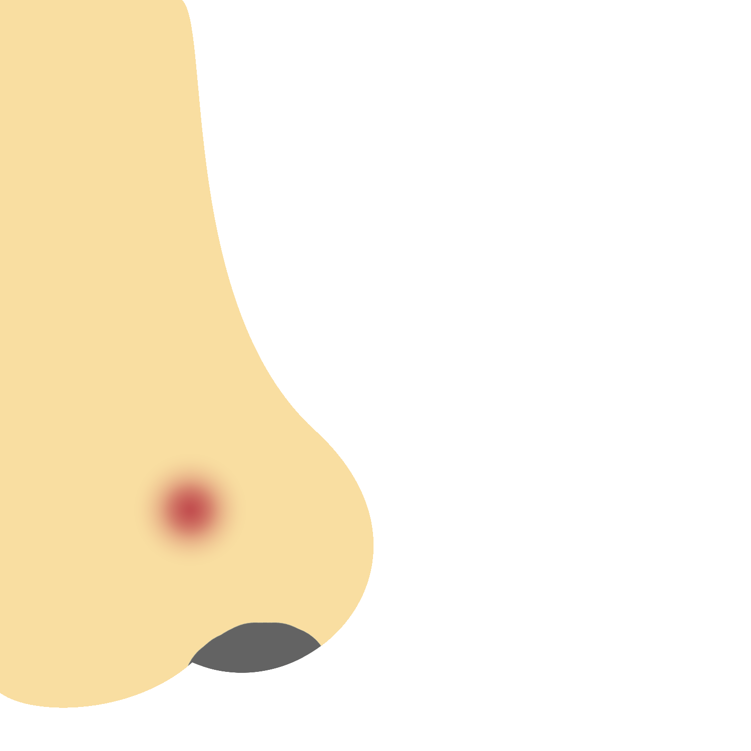 Nose with acne. Acne is caused by a unique set of characteristics for each person, so we create personalized acne fighting solutions and acne treatment.