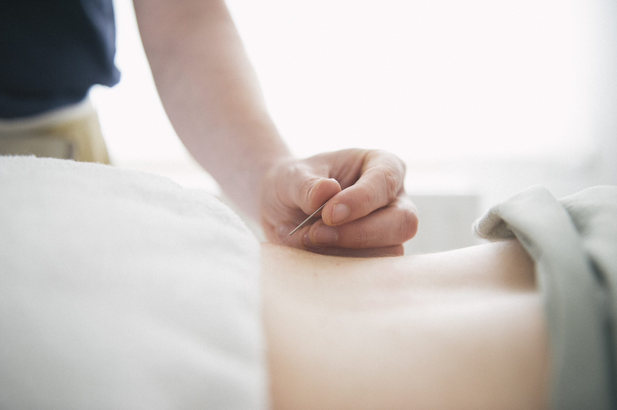 PPT Clinic, dry needling, physio, Dublin