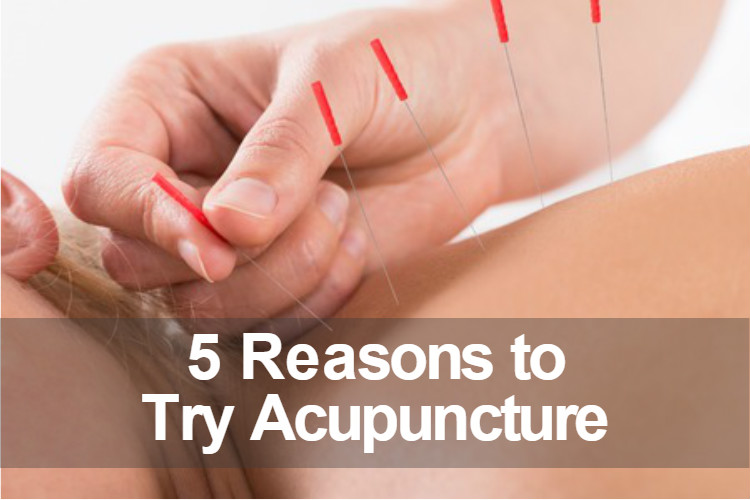 5-reasons-to-try-acupuncture-image.jpg