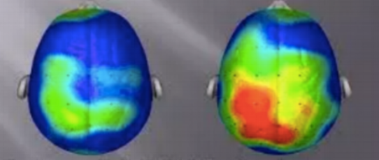 Brain scan showing theta waves activated