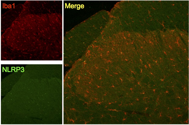 NLRP3 expression by spinal microglia