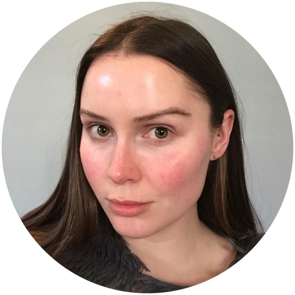 Rosacea Face