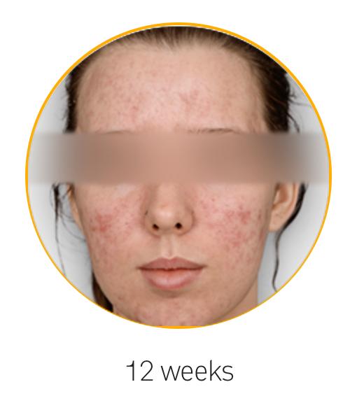 12 Weeks Kleresca