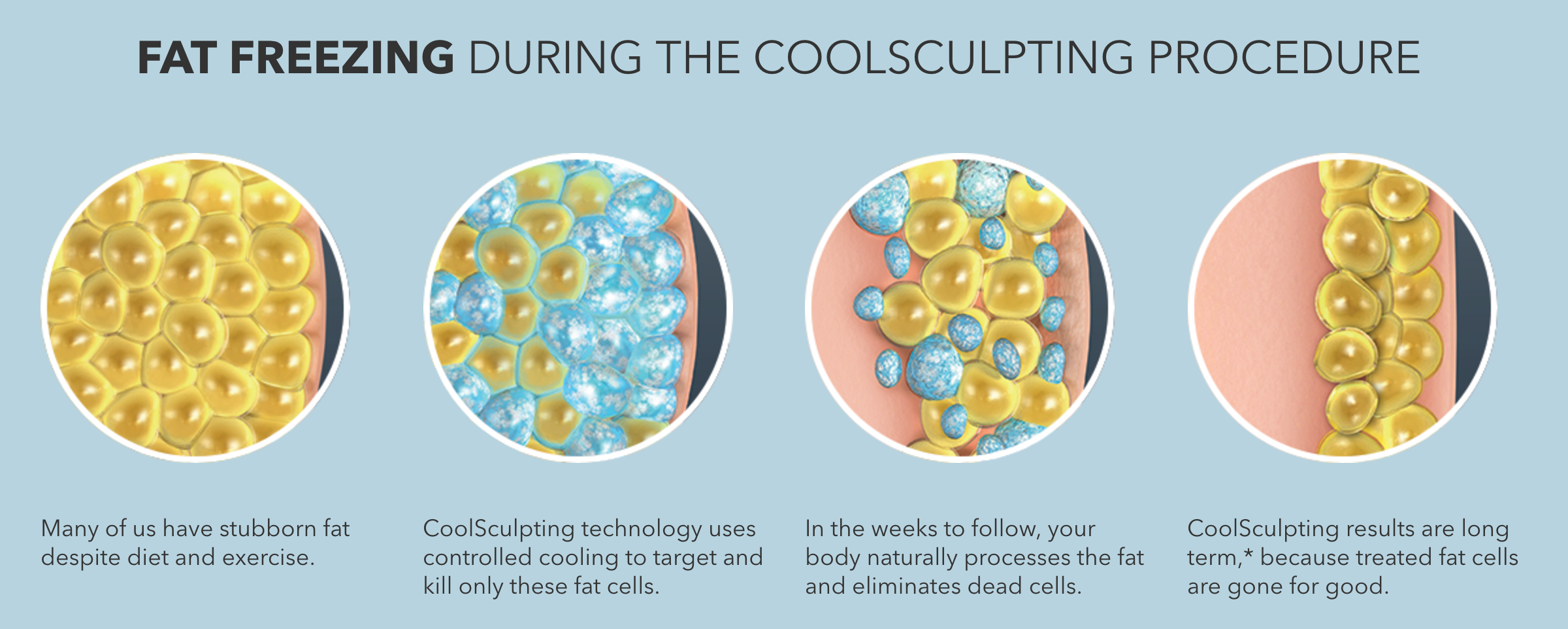 CoolSculpting Process