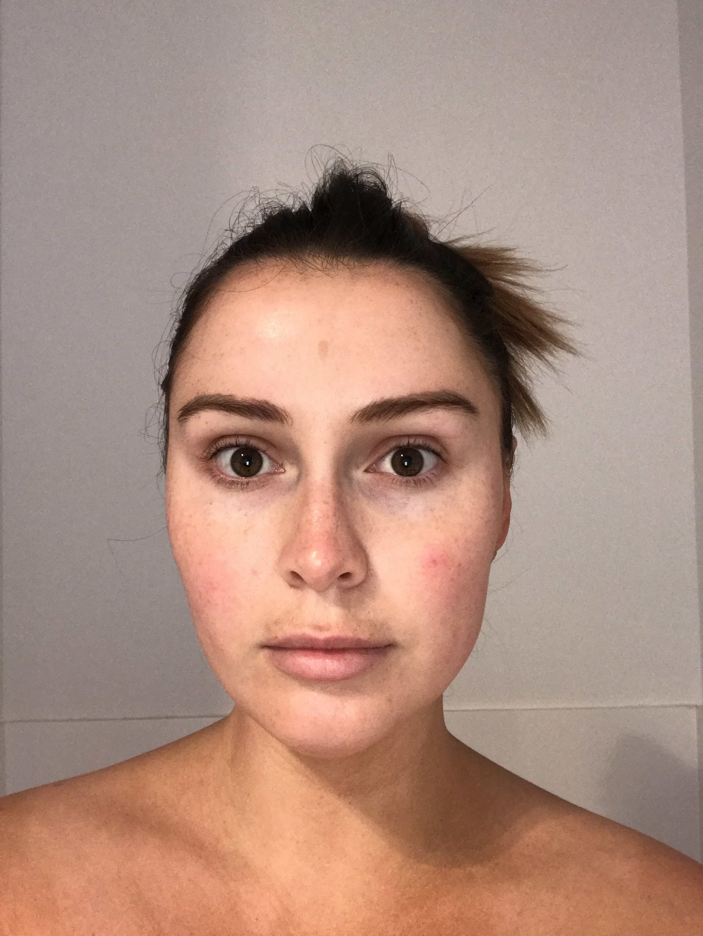 Day 1 - My skin felt very smooth and looked very clean, I also started to notice the pigmentation on my top lip and around my hairline getting darker