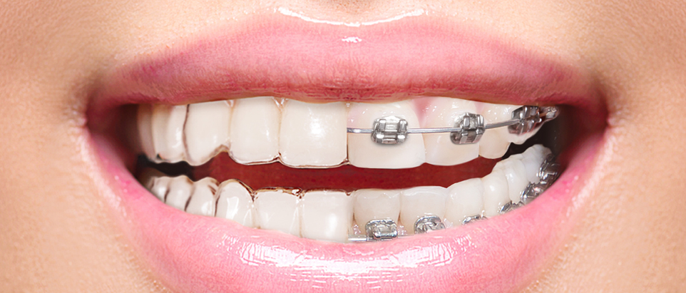 962x411-EZ-SMILE-vs-Braces-Blog-Header.jpg
